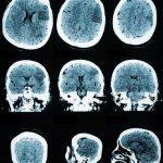 la-estimulacion-electrica-sincronizada-del-cerebro-mejora-la-memoria-3810_620x368