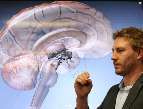Un diminuto estimulador cerebral podría tratar la epilepsia.
