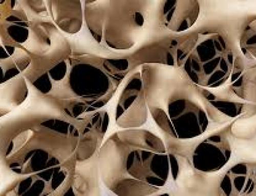 La mayoría de los medicamentos para la osteoporosis no producen hueso. Éste lo hace.