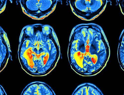 Nuestros cerebros recuerdan las cosas según la forma en que las aprendemos